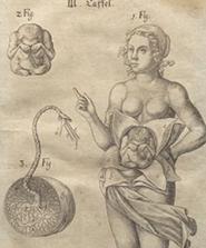 Ausstellung - Geburtshilfe in der Frühen Neuzeit